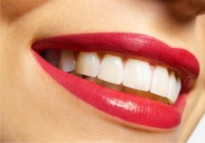 Реставрация улыбки, или поговорим об имплантации