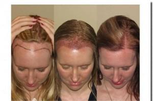 Что делать, если застало врасплох поредение волос в области челки?