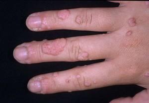 Бородавка на указательном пальце: хотите ходить с кривым ногтем?