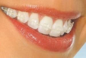 Несъемные брекеты из качественной керамики подарят вам идеальную улыбку