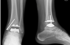 Эндопротезирование голеностопного сустава: суть операции и стоимость