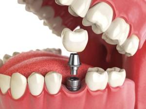 Услуги по протезированию зубов в Москве