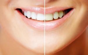 Правильное питание для белизны зубов.