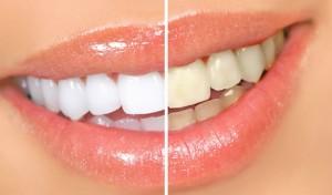 Как сделать улыбку белоснежной
