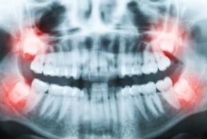 Особенности роста и ситуации, когда нужно удалять зубы мудрости