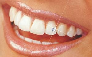 Скайсы – крайне популярные зубные украшения