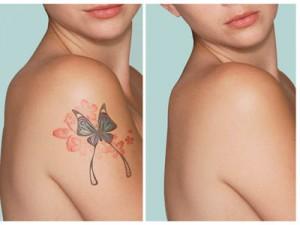 Является ли удаление татуировки эффективным?