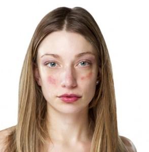 Аллергическая кожа: характеристики и уход