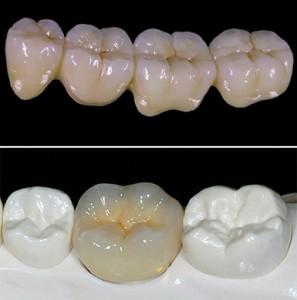 Металлокерамические коронки - доступные способы вернуть красивую улыбку