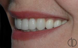 Восстановление зубов зубными коронками