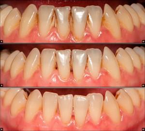 Гигиена полости рта, почему важно чистить зубы