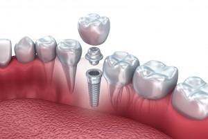 Одномоментная имплантация зубов: особенности и преимущества