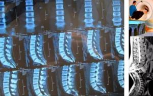 Как проходит МРТ позвоночника в современных центрах Санкт-Петербурга?