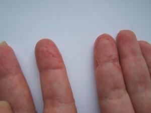 Облазит кожа на пальцах рук.