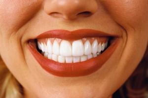 Самостоятельное отбеливание зубов