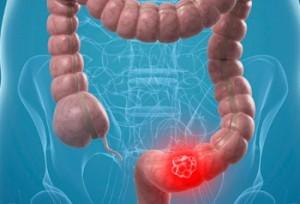 Как диагностировать синдром раздраженного кишечника