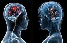 Мозг мужчины и женщины.